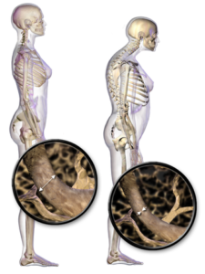 осанка при остеопорозе